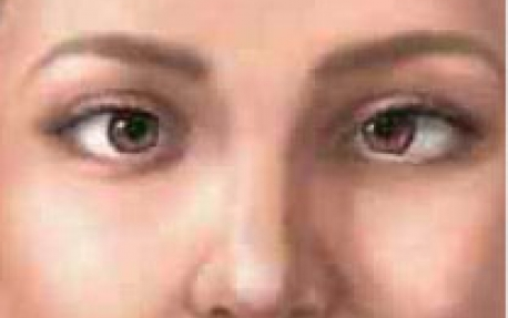 0dd613006a7af O Estrabismo é uma patologia oftalmológica que consiste no desalinhamento  dos olhos. A maioria dos casos tem início na infância, mas também pode  ocorrer ...